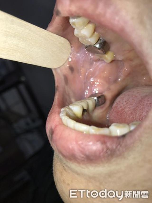 Xuất hiện nhiều đốm tàn nhang ở môi, họng và tay, người phụ nữ được chẩn đoán mắc bệnh ung thư - Ảnh 3.