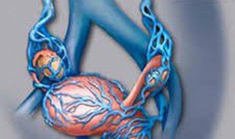 Giãn tĩnh mạch thừng tinh - chứng bệnh có thể gây vô sinh - Ảnh 1.