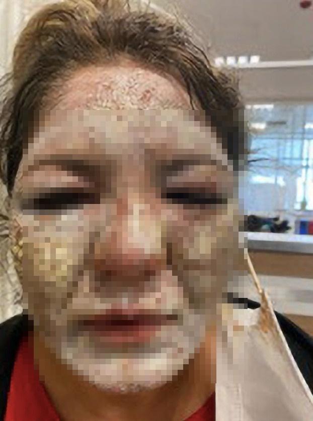 """Sở hữu làn da trắng mịn rồi vẫn muốn xóa nếp nhăn, người phụ nữ 40 tuổi nhận cái kết """"chảy máu mắt, tàn khuôn mặt"""" không biết kêu ai - Ảnh 3."""