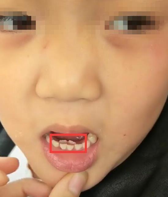 Bé gái 8 tuổi tự nhiên kêu đau răng, bà đưa đi khám thì đã thấy răng mọc thành hai hàng - Ảnh 1.