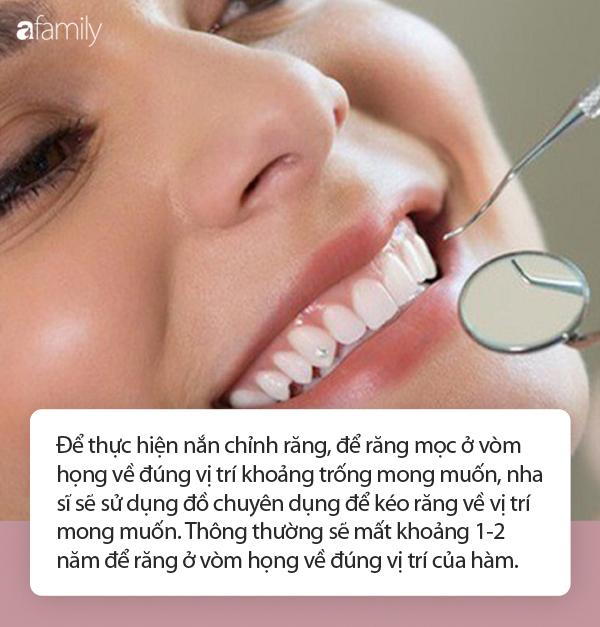 Kéo răng từ vòm họng ra ngoài hàm răng: Tưởng chỉ là trò đùa hóa ra đây là một phương pháp nắn chỉnh răng! - Ảnh 3.