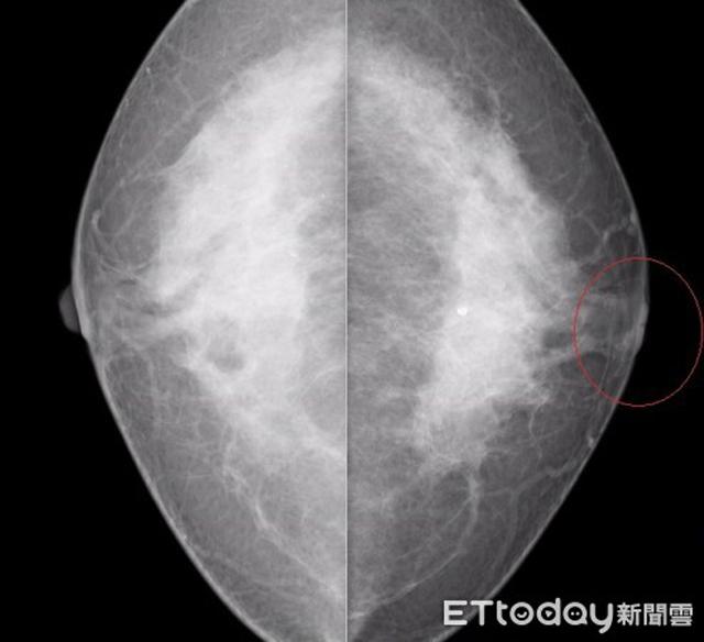 Tụt núm vú suốt 12 năm không đau không ngứa, bà cụ muốn phẫu thuật chỉnh hình nhưng không ngờ phát hiện điều này - Ảnh 2.