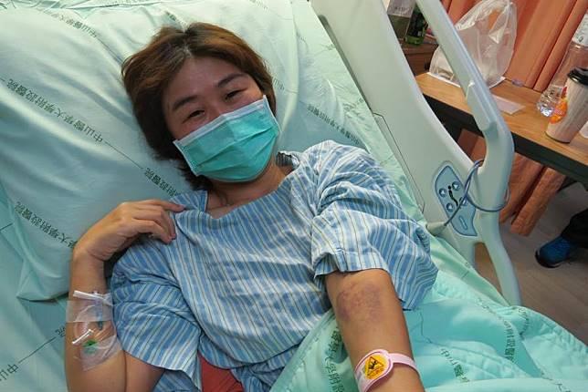 Không hút thuốc mà vẫn bị ung thư phổi, cô gái khóc nấc khi lỡ chủ quan bỏ qua dấu hiệu nguy hiểm này ở ngón tay - Ảnh 1.