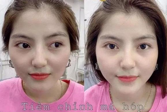 Bị soi từng phẫu thuật thẩm mỹ mới có dung nhan hiện tại, bạn gái tin đồn của Quang Hải lên tiếng đáp trả cực gắt - Ảnh 6.