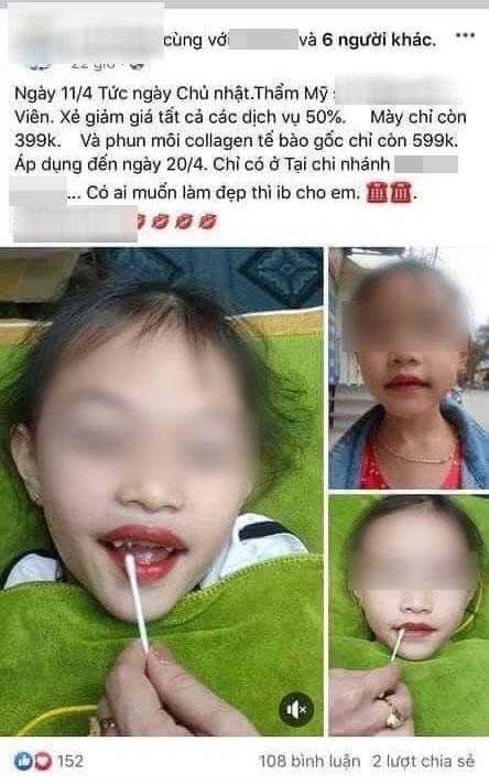 Từ chuyện bé 5 tuổi phun môi collagen: Phun xăm môi cho trẻ em dẫn đến những hệ lụy gì? - Ảnh 2.
