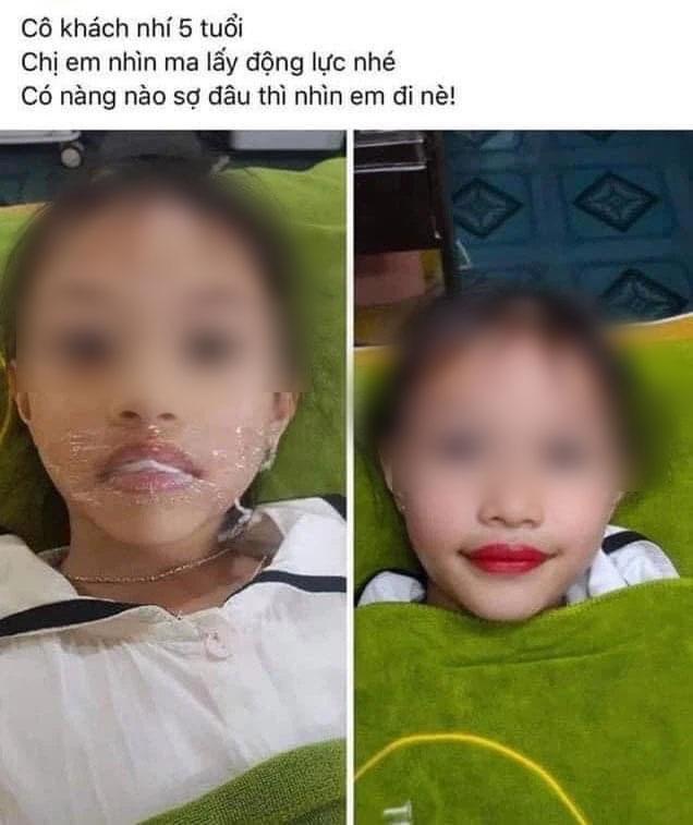 Từ chuyện bé 5 tuổi phun môi collagen: Phun xăm môi cho trẻ em dẫn đến những hệ lụy gì? - Ảnh 5.