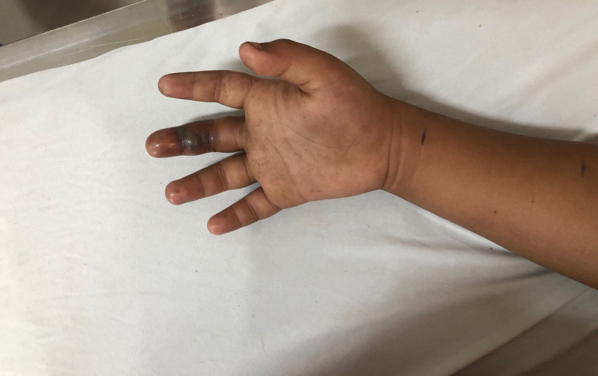 Bé 6 tuổi rối loạn đông máu nặng nghi bị rắn cắn - Ảnh 2.
