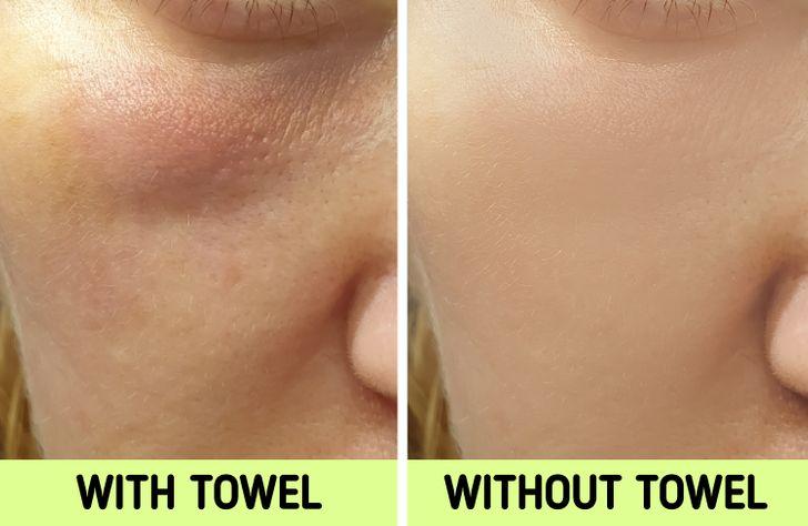"""Nếu biết lý do khiến làn da ngày càng nhăn nheo mụn nhọt, bạn sẽ """"cạch"""" đến già việc dùng khăn lau khô mặt - Ảnh 6."""