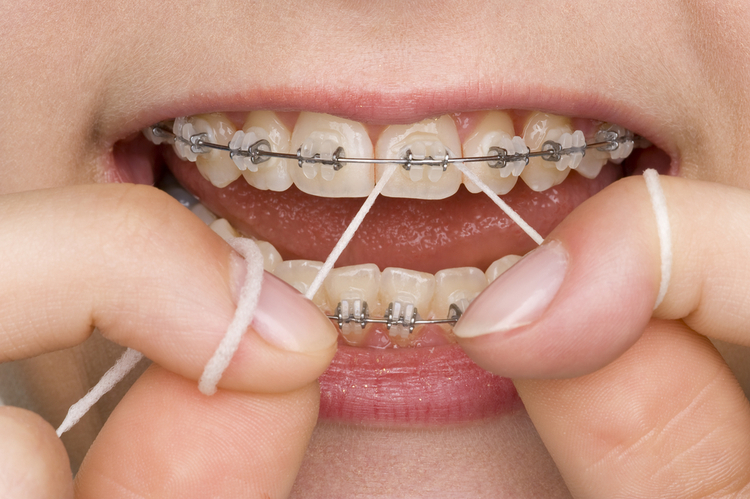 Sau niềng răng phải biết giữ gìn và vệ sinh răng miệng - Ảnh 2.