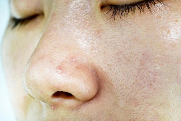 Từng chịu trận với da dầu bết dính cực kỳ khó chịu, cô nàng tì ra 7 sản phẩm  - Ảnh 1.