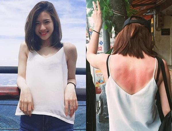 Nhìn cảnh cháy nắng của sao Việt mà hãi: Trâm Anh lưng đỏ rát, Kỳ Duyên chân sưng vù, ai sắp đi du lịch nên bó cẩn - Ảnh 1.