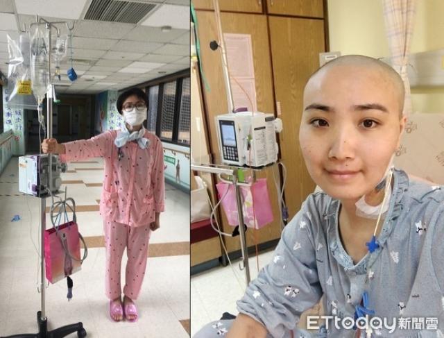 Nướu răng sưng phù, chảy máu, cứ ngỡ do áp lực công việc, cô gái được chẩn đoán mắc bệnh ung thư máu  - Ảnh 2.
