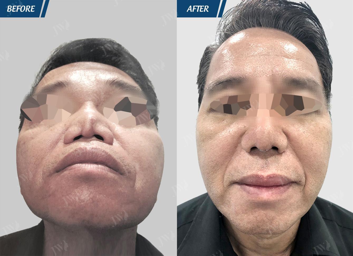 Bác sĩ Tú Dung: Còn quá nhiều thách thức để trả lại bản chất cao quý cho phẫu thuật thẩm mỹ - Ảnh 3.