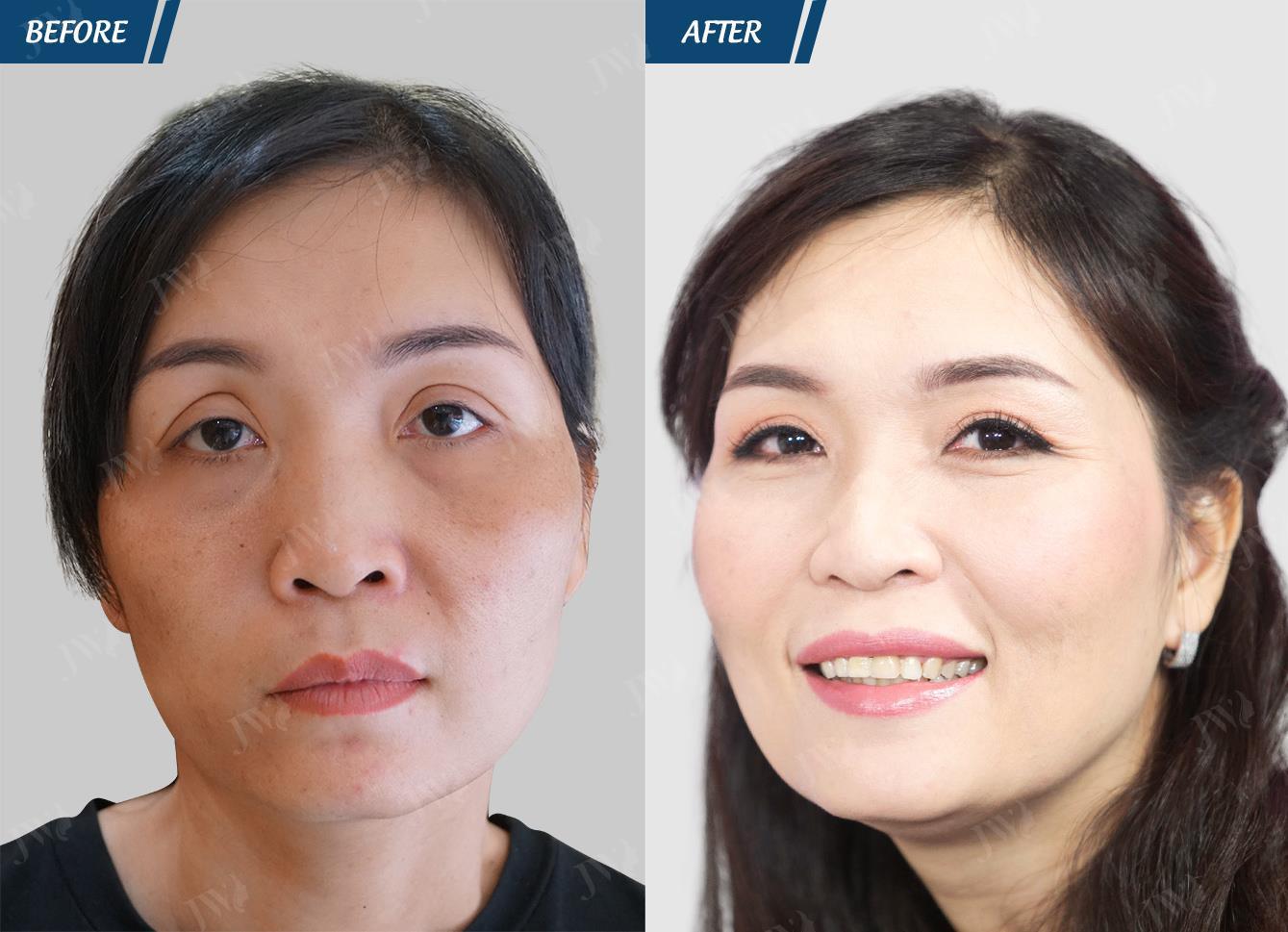 Bác sĩ Tú Dung: Còn quá nhiều thách thức để trả lại bản chất cao quý cho phẫu thuật thẩm mỹ - Ảnh 4.