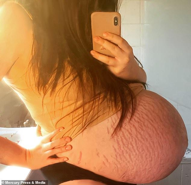Mẹ bầu rạn da đến mức chảy cả máu, đến khi em bé chào đời bác sĩ kịp hiểu ngay ra nguyên nhân vì sao - Ảnh 1.