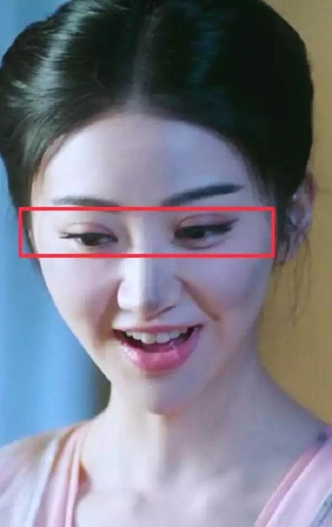 """Cảnh Điềm từng công khai thừa nhận bản thân đã phẫu thuật cắt mí hỏng khiến đôi mắt sưng lên trong quá trình quay """"Đại Đường vinh diệu""""."""
