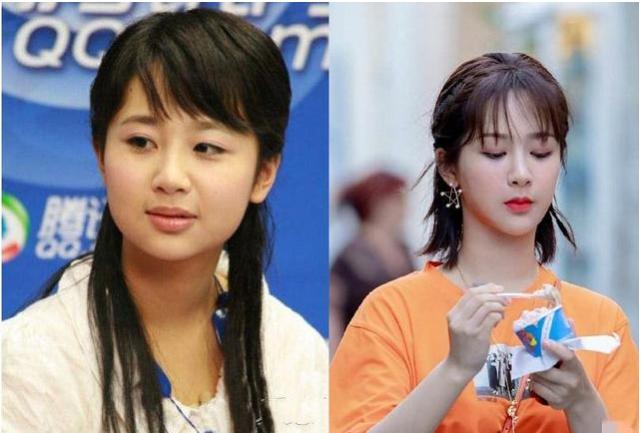 """Angelababy, Triệu Lệ Dĩnh cùng loạt mỹ nhân Hoa ngữ bị """"bóc phốt"""" đụng dao kéo - Ảnh 4."""