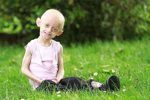 """Hội chứng Progeria: Giải mã bí ẩn của những đứa trẻ """"già sớm"""" - Ảnh 1."""