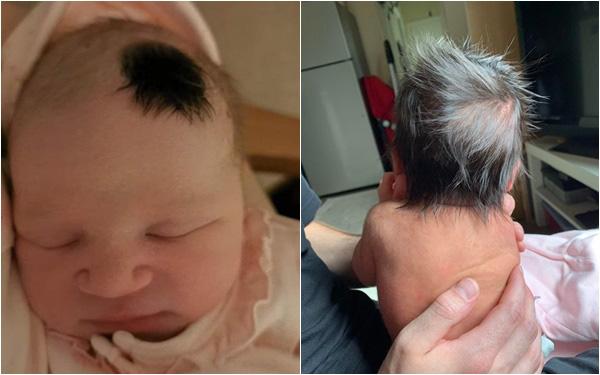 Có trẻ sinh ra đã sở hữu mái tóc dày như bờm sư tử, có bé chỉ có 1 chỏm tóc, vì sao lại vậy?