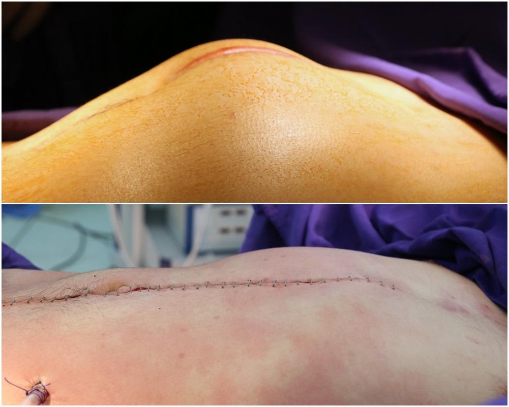 Phẫu thuật khối u di căn ổ bụng cho bệnh nhân ung thư tinh hoàn - Ảnh 2.