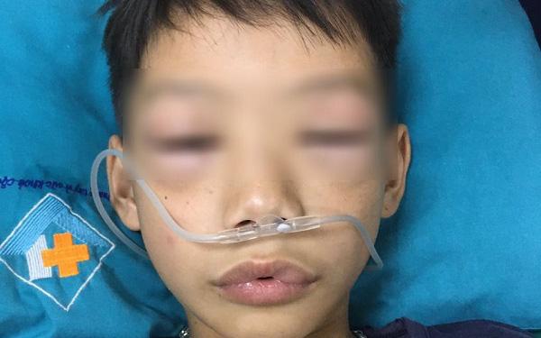 Bé trai 10 tuổi sốc phản vệ phù nề vùng môi và mí mắt 2 bên sau uống thuốc tự mua chữa ho, sốt