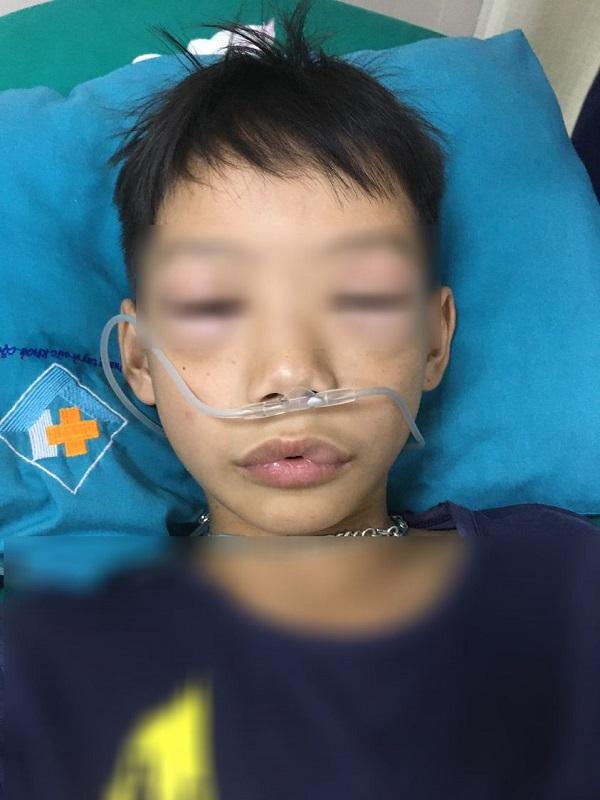 Bé trai 10 tuổi sốc phản vệ phù nề vùng môi và mí mắt hai bên sau uống thuốc tự mua chữa ho, sốt - Ảnh 1.