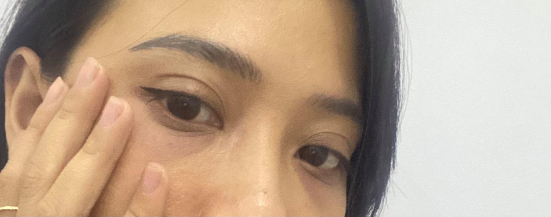 Nghe cô nàng review tiêm trị thâm mắt: Chẳng đau bằng nặn mụn, làm một loáng là xong mà cải thiện thấy rõ - Ảnh 1.