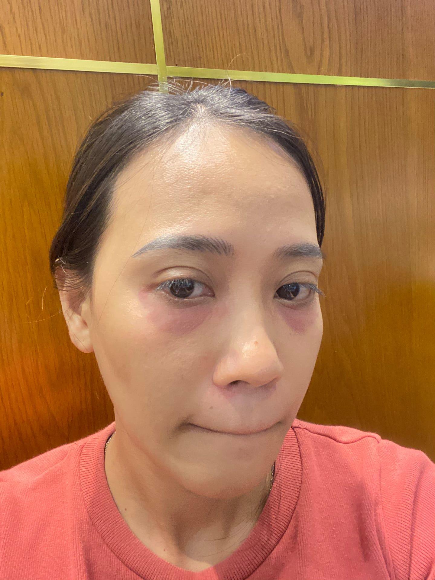 Nghe cô nàng review tiêm trị thâm mắt: Chẳng đau bằng nặn mụn, làm một loáng là xong mà cải thiện thấy rõ - Ảnh 6.
