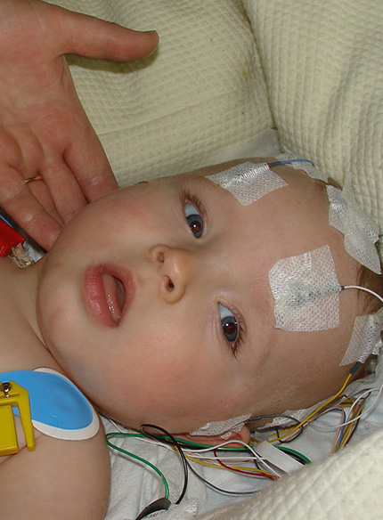 Khác biệt giữa 2 căn bệnh nguy hiểm, hay gặp ở trẻ nhỏ: Viêm não mô cầu và viêm não Nhật Bản - Ảnh 2.