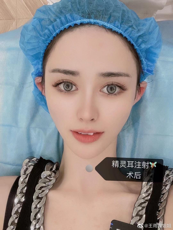 """Gái Trung Quốc đổ xô đi phẫu thuật """"tai yêu tinh"""": Người thất kinh bỏ chạy, người lại khen sang chảnh - Ảnh 1."""