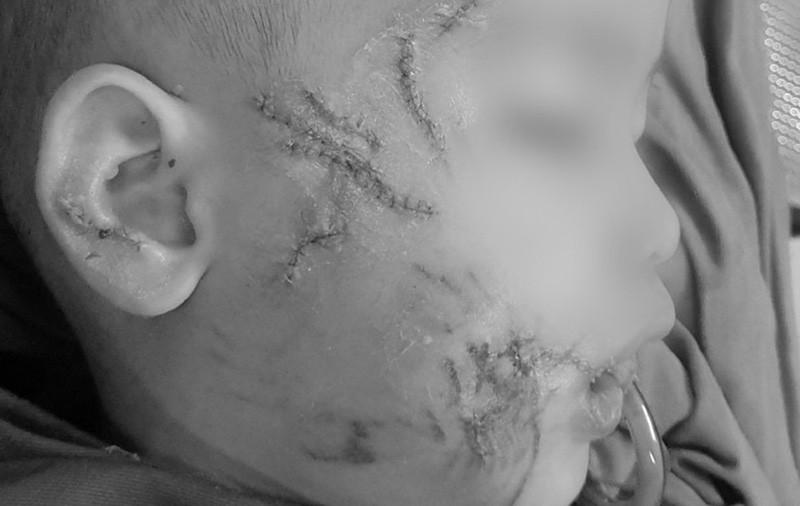 Bé 3 tuổi tổn thương nghiêm trọng vùng mặt do chó nhà hàng xóm cắn - Ảnh 1.