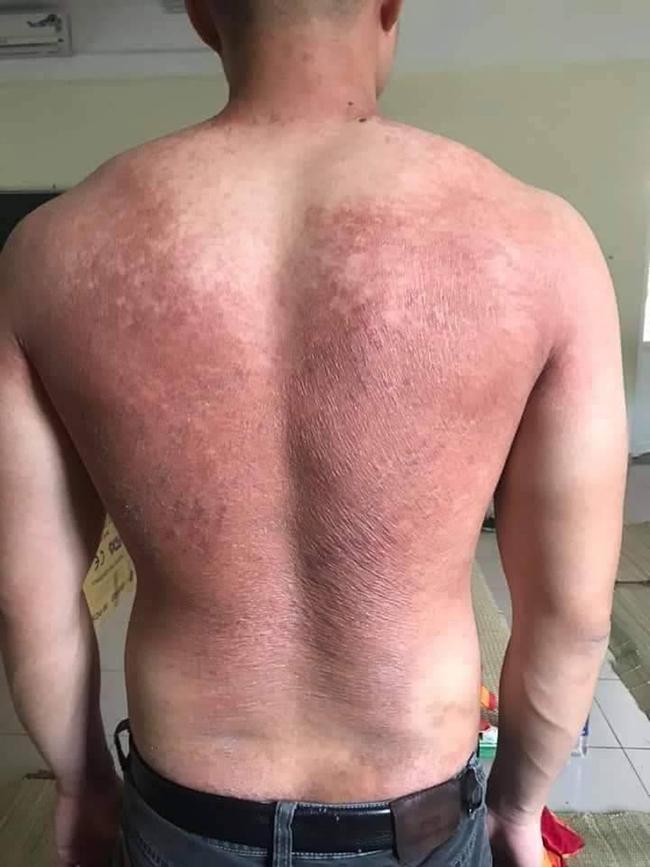 Hình ảnh tấm lưng phồng rộp của bác sĩ nơi tâm dịch Bắc Giang khiến nhiều người nghẹn ngào - Ảnh 2.