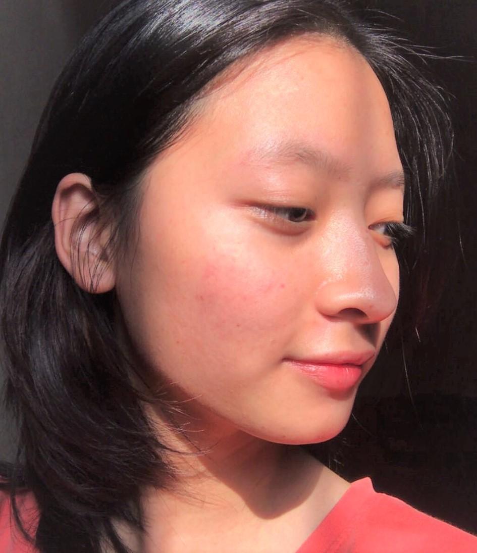 Chỉ với loạt sản phẩm dưới 200K, cô gái này đã thoát cảnh mụn ẩn nhiều như quân Nguyên, da hồi phục đến ngỡ ngàng - Ảnh 1.