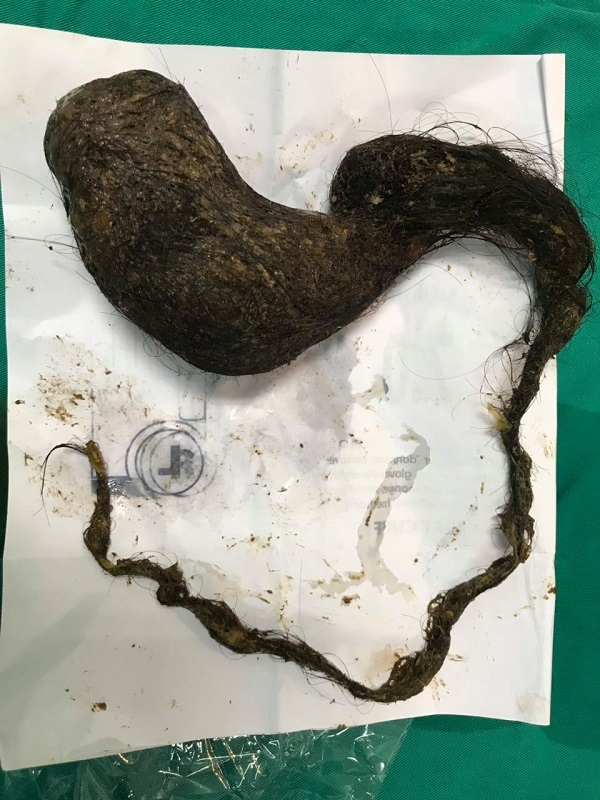 Choáng bé gái 11 tuổi mắc hội chứng hiếm gặp tự ăn tóc mình với khối lượng  nặng gần 1kg - Ảnh 1.