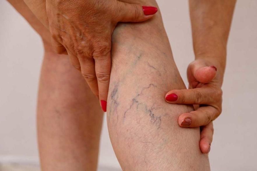 Suy giãn tĩnh mạch chân - Nguy hiểm nếu không điều trị sớm - Ảnh 1.