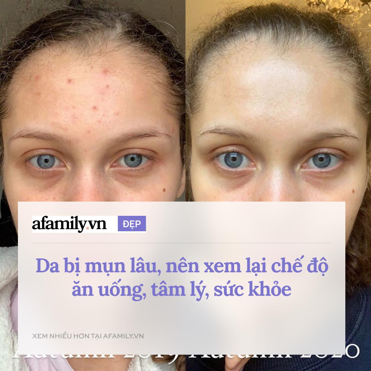 Làn da sẽ được trẻ hóa vô cùng nếu nắm kỹ 15 quy tắc skincare đơn giản này  - Ảnh 14.