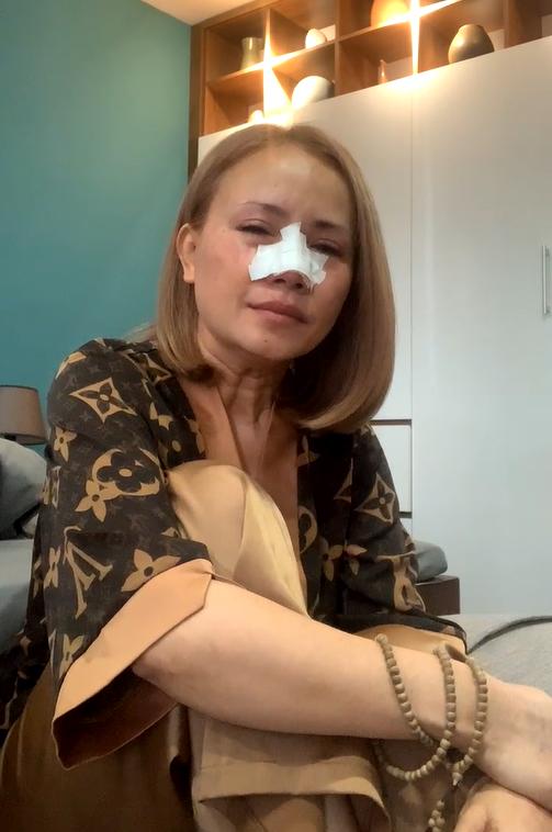 Cực căng: Hoàng Yến livestream khóc nức nở dù mũi đang băng bó, khẳng định nếu ngoại tình sẽ bị xe đâm