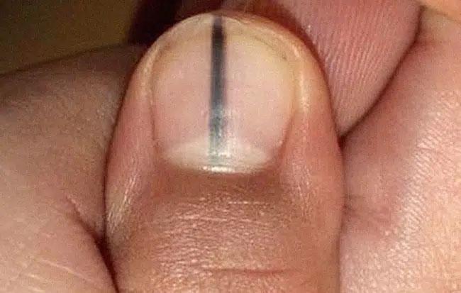 Sơn màu đỏ để che đi móng tay xấu xí, người phụ nữ không ngờ đó là dấu hiệu ung thư: Nếu có 3 biểu hiện này ở tay, bạn cần đi khám ngay - Ảnh 4.