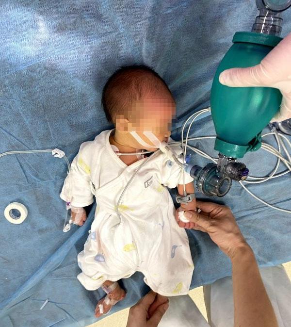 Bé sơ sinh 7 ngày tuổi bị sặc sữa tím tái toàn thân, không còn nhịp tim, không thở - Ảnh 1.