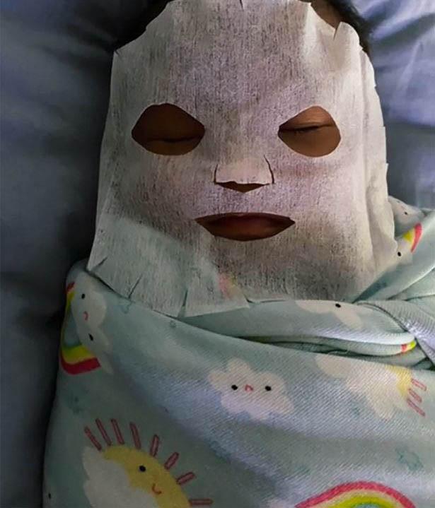 Thấy con 9 tuần tuổi bị nổi mụn ở mặt, người mẹ làm ngay chiếc mặt nạ đắp cho bé, biết thành phần nhiều người lo lắng - Ảnh 2.
