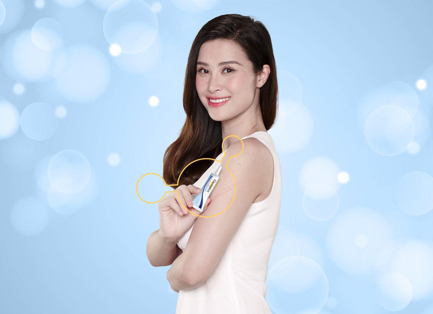 Dermatix® Ultra - giải pháp trị sẹo hiệu quả đã được chứng minh lâm sàng - Ảnh 1.