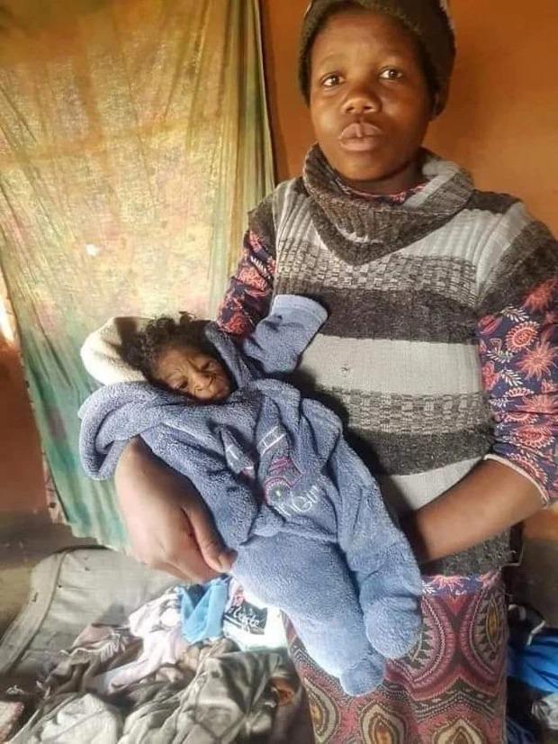 Con gái sơ sinh vừa chào đời, người phụ nữ sốc khi nhìn thấy khuôn mặt đứa trẻ nhưng đau đớn hơn cả là lời phán xét của những kẻ xa lạ - Ảnh 2.