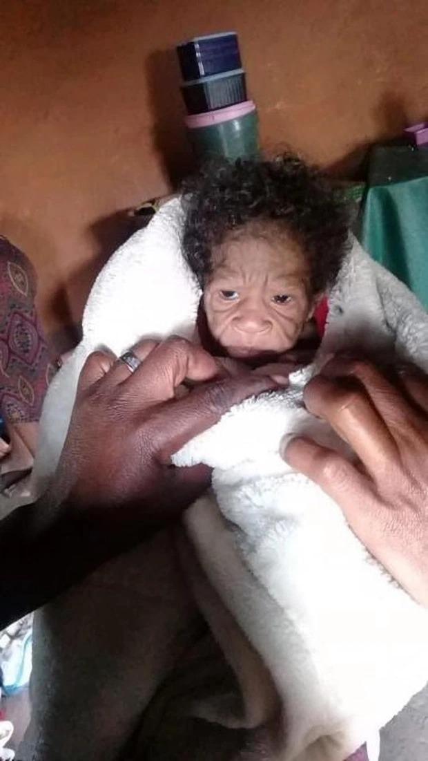 Con gái sơ sinh vừa chào đời, người phụ nữ sốc khi nhìn thấy khuôn mặt đứa trẻ nhưng đau đớn hơn cả là lời phán xét của những kẻ xa lạ - Ảnh 1.