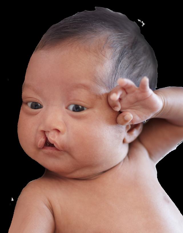 Phẫu thuật sứt môi, hở hàm ếch: Từ lưu ý đến giá cả, nơi nên thực hiện được chuyên gia chia sẻ tường tận - Ảnh 14.