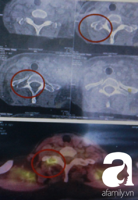 Người phụ nữ bị U gây bệnh nhuyễn xương đầu tiên tại Việt Nam được cứu chữa ngoạn mục - Ảnh 3.
