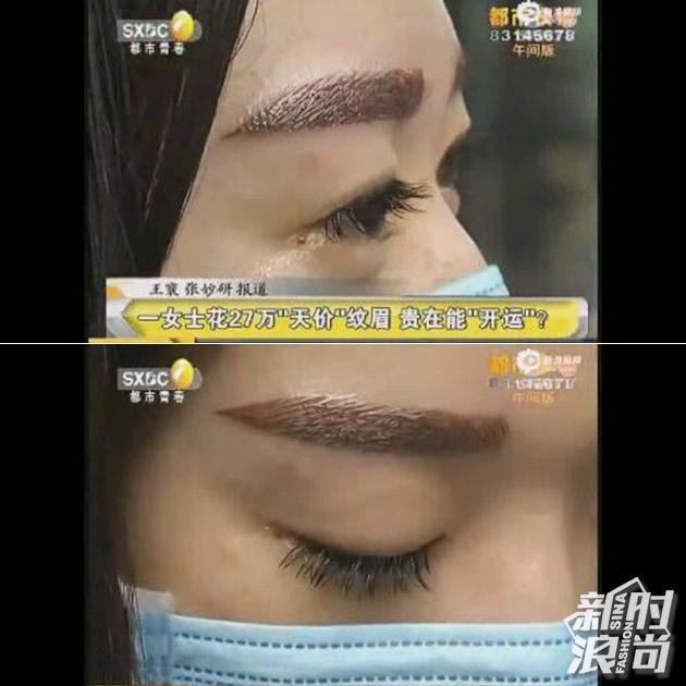 Chi hơn 900 triệu để làm lông mày, và đây là đôi lông mày mà người phụ nữ này nhận được - Ảnh 1.