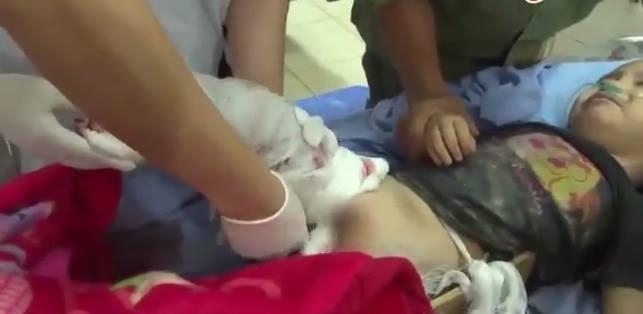 Bé trai 4 tuổi bị cụt chân do đá tảng lăn xuống nhà đè nát đôi chân đã qua cơn nguy kịch - Ảnh 1.