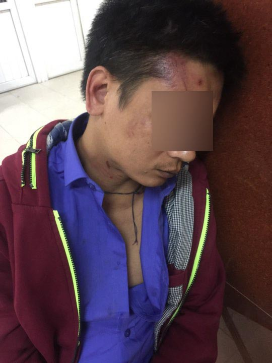 Người đàn ông giữa đêm bị bảo vệ BV Phụ Sản HN đánh rách mặt khi đưa người nhà đi cấp cứu - Ảnh 2.