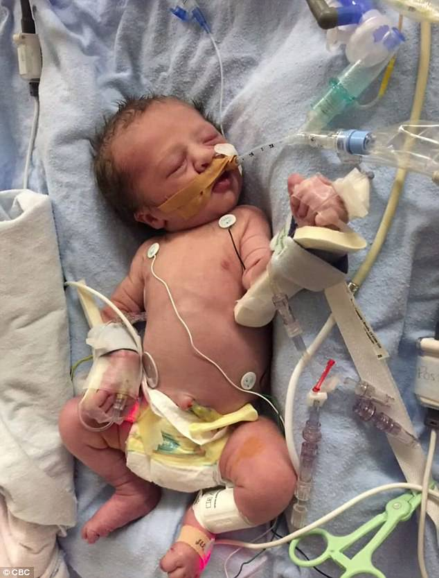 Ca phẫu thuật có một không hai trên thế giới: Phẫu thuật cho thai nhi dị tật tim khi còn nằm trong bụng mẹ - Ảnh 2.