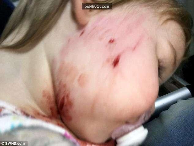 Bé gái 18 tháng tuổi bị chó cắn vì hôn chó và bài học cho  phụ huynh khi cho con tiếp xúc với động vật - Ảnh 3.
